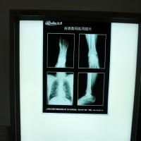 蓝色CT医用胶片