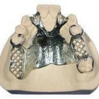 义齿假牙修复 焊接修补 北京义齿假牙激光焊接加工厂